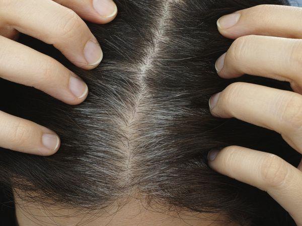 白髪って予防出来るの!?予防に効く『4つ』の方法があった。