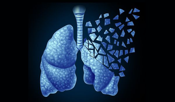 これでもあなたはタバコをやめない!?肺癌(がん)リスク増加リスクを知るべき。