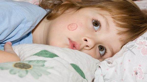 子供に発症しやすいといわれる皮膚病のはたけって何?はたけの原因と対処法は?